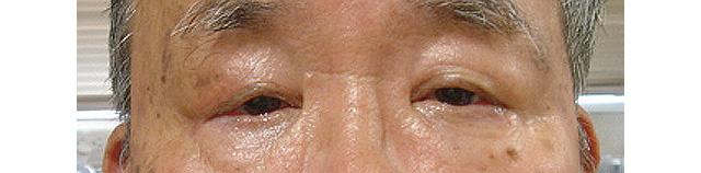 右眼瞼下垂症手術後