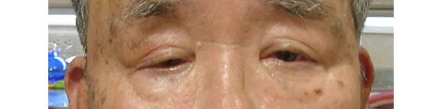 右眼瞼下垂症手術前