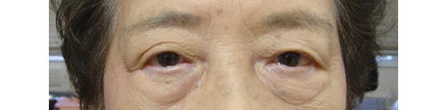 左眼瞼皮膚弛緩症手術後