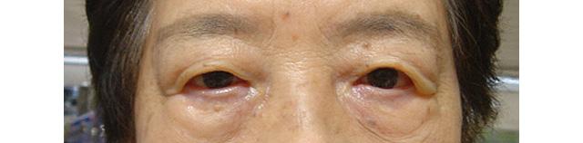 左眼瞼皮膚弛緩症手術前