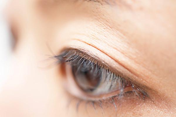 眼瞼下垂・逆さまつ毛の手術